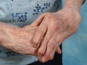 Как обнаружить наличие артроза рук