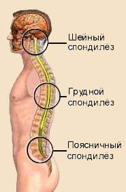 Симптомы спондилеза пояснично-крестцового отдела