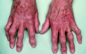 Сколько стадий артроза рук