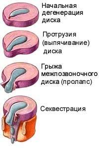 Симптомы дистрофических изменений при протрузии