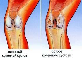 В чем различия между артритом и артрозом