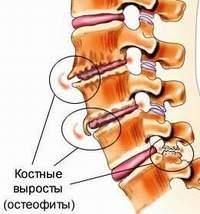 Почему в позвонках могут появиться остеофиты