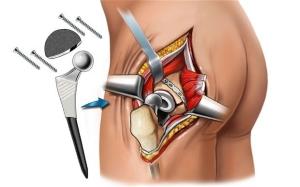 Медикаментозное лечение заболеваний суставов