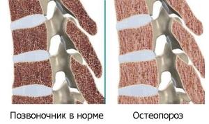 Почему развивается остеопороз позвоночника