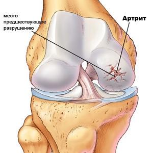 Признаки заболевания суставов