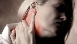 Признаки миозита шеи