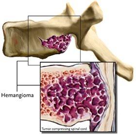Лечение стеноза печени народными средствами