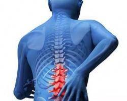 Признаки наличия опухоли в спинном мозгу