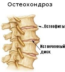 Краевые остеофиты тел позвонков
