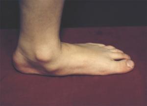 Почему развивается остеоартроз суставов стопы