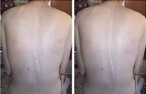 Сутулость позвоночника в шейно-грудном отделе