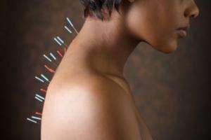 Иглотерапия при спондилезе шеи