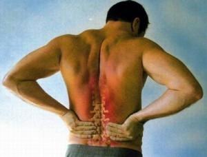 Какими лекарствами лечат остеохондроз поясницы
