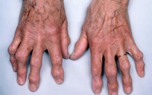 Как лечить остеоартроз пальцев на руках