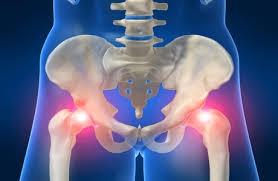 Lechenie-artroza-taza-lekarstvami.jpg
