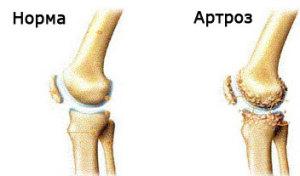 artroza-kolennogo-sustava-11