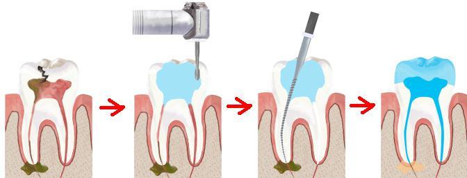 Хирургический метод лечения нерва