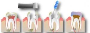 Методы удаления нерва в зубе