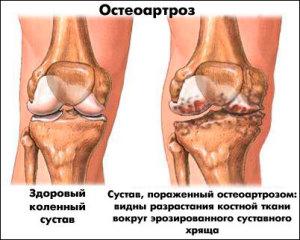 Лечение остеоартроза колена
