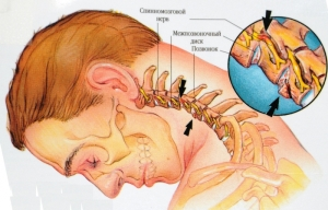 Остеохондроз шейных позвонков