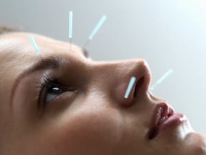 Иглоукалывание при неврите тройничного нерва