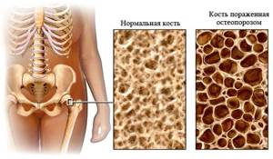 Профилактика и лечение остеопороза