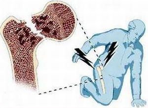 Prichiny-pojavlenija-osteoporoza