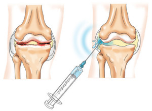 Лечение остеоартроза в коленном суставе суставная гимнастика м.с норбекова полная версия скачать