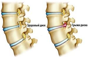 межпозвоночные грыжи при остеохондрозе