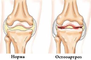 Остеоартроз второй степени