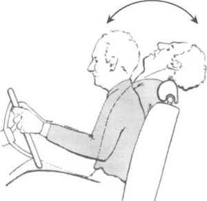 Причины смещения позвонков шеи