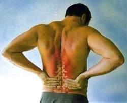Симптомы радикулита и остеохондроза: сходство и различие